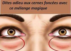 Un mélange magique à base de deux huiles super efficaces pour éliminer les cernes foncée en hydratant la peau sous les yeux, activant la circulation sanguine et apaisant