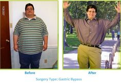 Amazing Transformations! Before and After Surgery with My Bariatric Solutions