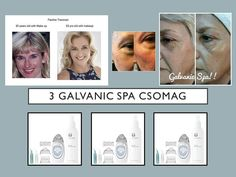 ‼️HÓ VÉGI AKCIÓ‼️ 3 DB PRÉMIUM CSOMAG SZUPER ÁRON‼️️ GALVANIC SPA: professzionális kozmetikai készülék - szabadalmaztatott önbeállító galvanikus árammal és cserélhető kezelőfejekkel az arc, a test és a fejbőr kezelésére. ❗ ❗ ❗ ✔ 🔝 A csomag tartalma: ✔️ a legújabb típus galvános arckezelő 4 kezelőfejjel ✔️ ️️1 doboz ageLOC hatóanyagú arcgél ✔️ hiarulonsavas arc-, test-, és hajpermet Várom az érdeklődéseteket, köszönettel❗❤️ 📱💻📞 📩