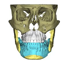 Learn more about the clinical cases and experiences from patients that have undergone any kind of orthognatic surgery procedure at the Institute. Double Jaw Surgery, Abdominal Hernia, 30 Day Transformation, Orthognathic Surgery, Chin Implant, Orthodontic Appliances, Oral Surgery, Photoshop, Low Impact Workout