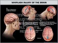 Traumatic brain injury (TBI) is brain damage or dysfunction caused by outside force. The exhibit features injury  to the head and brain that occurs during whiplash. The brain knocks against the front and back of the skull as the head is thrown backward and forward, damaging the frontal, temporal, and occipital lobes of the brain. Chronic Pain, Fibromyalgia, Anatomy Body Parts, Whiplash Injury, Occipital Lobe, Frontal Lobe, Nerve Cells, Cranial Nerves, Brain Science