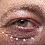 The Best Way to Remove Eye Bags Without Surgery