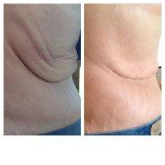 Julie has an amazing story!  She lost over 90 lbs in the last year and she was scheduled to have surgery on July 1 to remove the excess skin caused by her weight loss. She decided to try Nerium Firm and has since cancelled her surgery! These are her 40 day pictures. Nerium Firm works!  And it works well!  Julie is living proof!  I think a topical cream twice a day beats painful and expensive surgery any day!   http://dawnclifton.theneriumlook.com