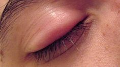 How to Get Rid of Eye Stye? In this article, we are discussing several ways to get rid of eye stye fast and naturally at home. A stye consists of swelling of a sebaceous gland just above the eyelid to form a reddish bump just like a pimple. A stye is caused due to a bacteria known as staph. It may sooner or later come to a... #EyeStye, #EyeStyeHomeRemedies, #EyeStyeTreatment, #EyeStyeTreatmentNaturally, #GetRidOfAStyeFast, #GetRidOfAStyeInADay, #GetRidOfAStyeInYourEyelid, #