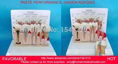 PATHOLOGICAL DENTAL MODEL TOOTH TEETH DENTIST,ORAL DENTAL TEACHING MODEL PASTE PERFORMANCE WITH EXPLANATION BOARD-GASEN-RZKQ003