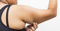 Goodbye Flab! Say Hello To Toned And Graceful Arms