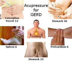 GERD/Heartburn/Acid-reflux acupressure points