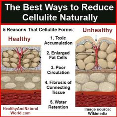 This Pin was discovered by Cathy Willson. Discover (and save!) your own Pins on Pinterest. | See more about reduce cellulite.