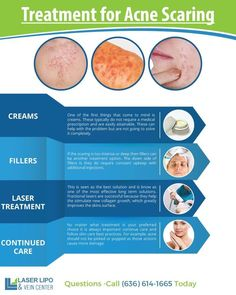 """— TRANSCRIPT — Treatment for Acne Scarring Creams:One of the first things that come to mind is creams. These typically do not require a medical prescription and are easily attainable. These can help with the problem, but are not going to solve it completely. Fillers:If the scarring is too intense or deep, then fillers can … Continue reading """"Treatment for Acne Scarring 