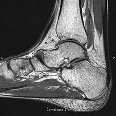Ankle MRI  clear visualisation of talus dome, calcaneus, tarsal bones etc