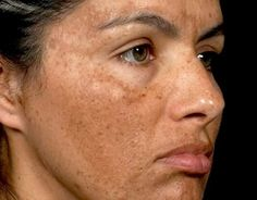 Home Remedies for Melasma Treatment Home remedies for melasma. Get rid of melasma naturally at home. Ways to heal Melasma fast. SEE DETAILS. Skin Treatments, Natural Treatments, Natural Acne Remedies, Home Remedies For Acne, Beste Foundation, The Face, Skin Care, Skin Care Products, Lighten Skin