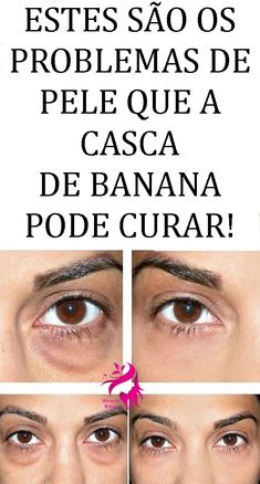 7  Dicas de Como Usar Banana Para Pele e Cabelo! #banana #bananaparapele #bananaparaocabelo #beneficiodabanana #comousarbananaparapeleecabelo #dieta #firness #emagrecer #adelagazar #perderpeso #dicasparapele #truquedebeleza #truquesdebeleza #dicasrápidas #dicasrapidas How To Make Hair, Make Up, Belleza Natural, Skin Tips, Anti Aging, Health Tips, Beauty Hacks, How To Remove, Skin Care