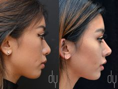 Before and After Revision Asian Rhinoplasty with rib cartilage and DCF (diced cartilage fascia). A diced cartilage fascia (DCF) graft was used to achieve subtle augmentation of the bridge to create a straighter and more refined profile while the tip was projected and refined to create a smaller, more defined nasal appearance. #asianrhinoplasty #nosejob #ribcartilage #model #drdonyoo #beverlyhills