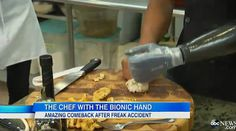 Watch a Chef With a Bionic Hand This is an incredible video