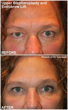Eyelid Lift, Eyelid Surgery, Before And After Pictures