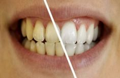 How to whiten teeth fast at home? ways to get white teeth. Home remedies to get rid of yellow teeth. Remedies for yellow teeth treatment Dental Health, Dental Care, Oral Health, Peau D'orange, Teeth Whitening Remedies, Stained Teeth, Photoshop, Canal E, White Teeth
