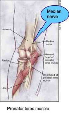Severe pain radiating down lower arm to fingers Pronator teres syndrome