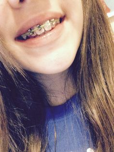 You can make fake braces with earring backs a paper clip super how to make fake braces take a rainbow loom rubber band and take solutioingenieria Gallery