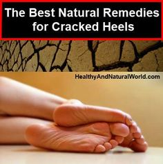 natural remedies for cracked heels