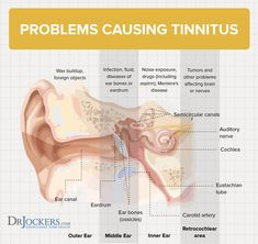 8 Key Ways to Beat Tinnitus Naturally Research has demonstrated that tinnitus is related to inflammation in the inner ear. Discover 8 key ways to beat tinnitus naturally. Helping Other People, Helping Others, Tinnitus Symptoms, Carotid Artery, Hearing Aids, Get Healthy, Healthy Foods, The Cure, Diet
