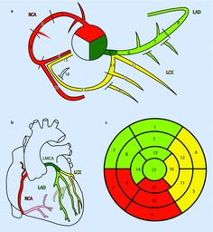 Coronary Artery Anatomy and Anomalies Cardiac Anatomy, Medical Anatomy, Nursing School Tips, Nursing Notes, Cath Lab Nurse, Arteries Anatomy, Heart Arteries, Cardiac Sonography, Cardiac Catheterization