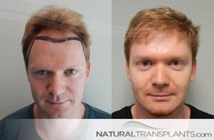 Hair Thinning   Hair Transplant Before and After