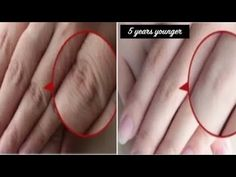 How to Make Your Hands Look 5 Years Younger Overnight! Wrinkle-free smooth fair hands - Care - Skin care , beauty ideas and skin care tips Beauty Tips For Glowing Skin, Health And Beauty Tips, Beauty Skin, Natural Beauty Tips, Clear Skin Face, Face Skin Care, Diy Skin Care, Skin Care Routine Steps, Skin Care Remedies