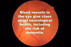 The width of blood vessels in the retina may indicate brain health years before the onset of dementia and other deficits. Blood Vessel In Eye, Blood Vessels, The Retina, Vision Therapy, Science Facts, Neurology, Neuroscience, All About Eyes, Medical Conditions