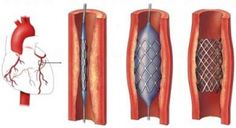 What is coronary stenting ?
