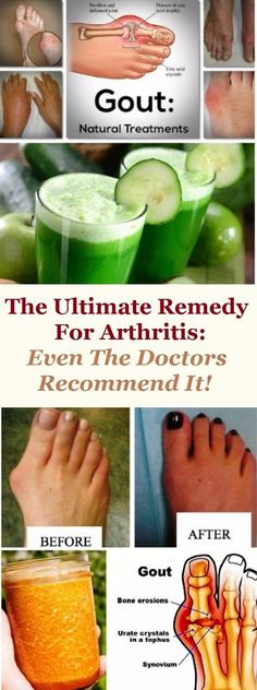 Joint Pain Remedies The Ultimate Remedy For Arthritis: Even The Doctors Recommend It! - The Ultimate Remedy For Arthritis: Even The Doctors Recommend It! Rheumatoid Arthritis Treatment, Knee Arthritis, Arthritis Remedies, Health Remedies, Arthritis Relief, Juvenile Arthritis, Arthritis Exercises, Water Retention Remedies, Recipes