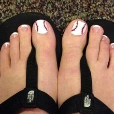 Baseball toenails (baseball season is right around the corner)