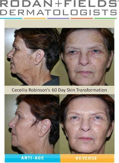 "rodan and fields before and after photos | AMAZING RESULTS using our Rodan + Fields® ""Reverse Regimen"""