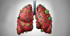 Nettoyer les poumons et augmenter la capacité pulmonaire, réduire le risque de cancer du poumon et améliorer la santé des voies respiratoires.