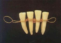This piece dates back to about the Fourth Century BC and is on display at the Paris Dental School Museum. It is one of the first fixed dental prostheses in history. It is made of a gold band in which animal teeth are embedded to replace missing teeth.  http://farm5.static.flickr.com/4022/4349500493_0e590aa269_o.gif