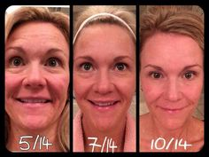 Results don't lie!!! These products are changing lives and faces all in big ways!!! Http://BrittanyThacker.myrandf.com