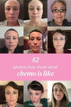 My Chemotherapy Diary: 52 Photos of Hair Loss and Recovery - My Chemotherapy. - My Chemotherapy Diary: 52 Photos of Hair Loss and Recovery – My Chemotherapy Diary: 52 Photos of Hair Loss and Recovery - Baby Hair Loss, Hair Loss Cure, Hair Loss Remedies, Prevent Hair Loss, Best Hair Loss Shampoo, Biotin For Hair Loss, Oil For Hair Loss, Biotin Hair, Hair Shampoo