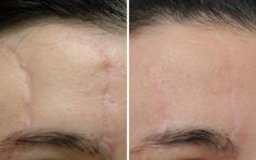 before and after facial scars