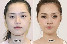 <strong>In a country with the highest rate of plastic surgery worldwide, anything you want to change is possible — including eyes.</strong>