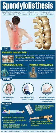 pregnancy and having spondylothesis