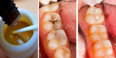 How To Make Homemade Toothpaste To Heal Cavities, Gum Disease, And Whiten Teeth!When you try this excellent natural toothpaste the first time. Coconut Oil For Teeth, Coconut Oil Pulling, Clove Oil For Teeth, Oral Health, Dental Health, Dental Care, Pasta Dental Casera, Reverse Cavities, Homemade Toothpaste