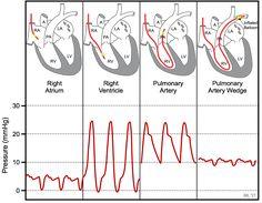 Cardiac Anatomy, Medical Anatomy, Cardiac Catheterization, Heart Catheterization, Cath Lab Nurse, Heart Pressure, Cardiac Sonography, Flight Paramedic, Critical Care Nursing