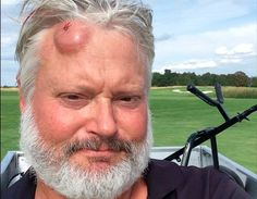 This Swedish man was hit in the head with a golf ball so hard that it looks like the actual ball broke through his skin, embedded itself in his skull, and the wound healed around it. Put another way: the size of that welt is fucking outrageous. Funny Golf Pictures, Golf Backswing, Swedish Men, Golf Now, Justin Rose, Golf Instructors, Golf Humor, Sports Humor, Golf Lessons