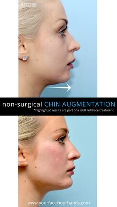 Before and after results of a non-surgical chin augmentation with Dermal Fillers by Dr. David Mabrie. #aesthetics #plasticsurgery #cosmeticsurgery #beforeandafter