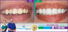 Congratulations Marie on your new Smile! Thank You Dr Elie GEMAA! Thank You Smile Creators TEAM! 71-680660 #WeCreateYourHollywoodSmile http://youtube.com/smilecreatorslb http://smilecreators-lb.com/before-after https://www.facebook.com/SmileCreators/ http://www.cosmeticdentistrybeirut.com/ http://www.smilebeirut.com/ http://www.veneers-beirut.com/  #HollywoodSmile #EmaxVeneers #PreplessVeneers #Lebanon #DentalClinic #Dentist #Laser #GummySmile #Beirut
