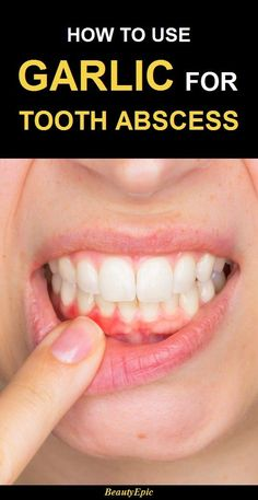 16 Best abscess tooth images in 2019 | Natural home remedies