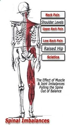 imbalances stopping sciatic nerve pain relief