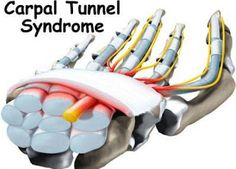 Natural Carpal Tunnel Syndrome Treatments for Pain Relief