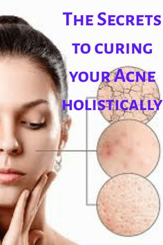 The Secrets to curing your Acne holistically glow up hacks clear skin marks remedies natural remedies # acne natural treatment prone skin care remedies overnight scaring treatment Acne Remedies, Natural Remedies, Clear Acne Overnight, Natural Acne Treatment, Acne Marks, How To Get Rid Of Acne, Clear Skin, Glow