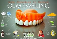 Home Remedies to Reduce Gum Swelling Prev of Swelling of the gums is a common problem. The tissue that forms the gums is thick, fibrous and full of blood vessels. Hence, when there is swelling, the gums may protrude or bulge out and appear red Gum Health, Teeth Health, Healthy Teeth, Oral Health, Healthy Life, Dental Health, Top 10 Home Remedies, Natural Home Remedies, Sore Gums Remedy