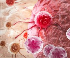 Phylogica Peptide Fusion Kills Aggressive Breast Cancer Cells